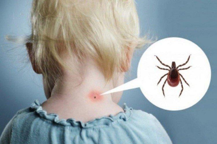 кліщ на шиї в дитини